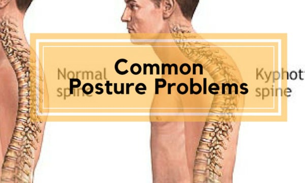 Common Posture Problems
