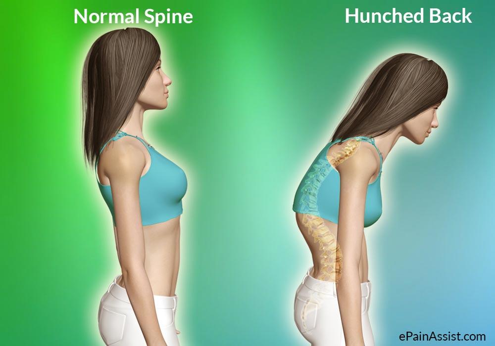 Hunchback posture problem